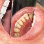 Dental tartar, what is it, and how does it affect oral health